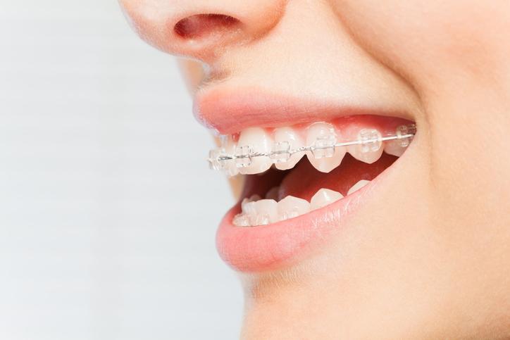 Die Schienen, die individuell angepasst werden, schieben bzw. ziehen die Zähne in die gewünschte Position.